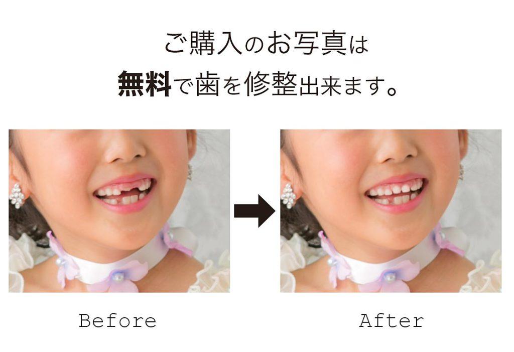 記念撮影-歯の修整